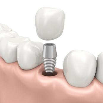 Model of dental implant in jaw I Dental implants mitchell SD