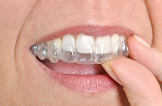 woman putting in clear braces I Invisalign Mitchell SD