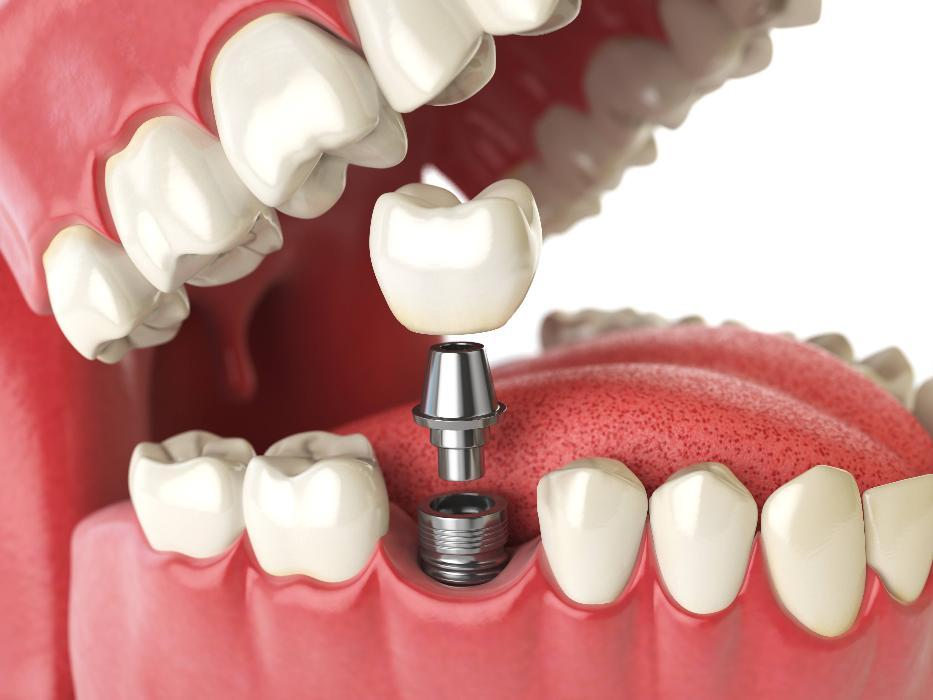 Graphic of dental implant replacing missing tooth in Mitchell SD