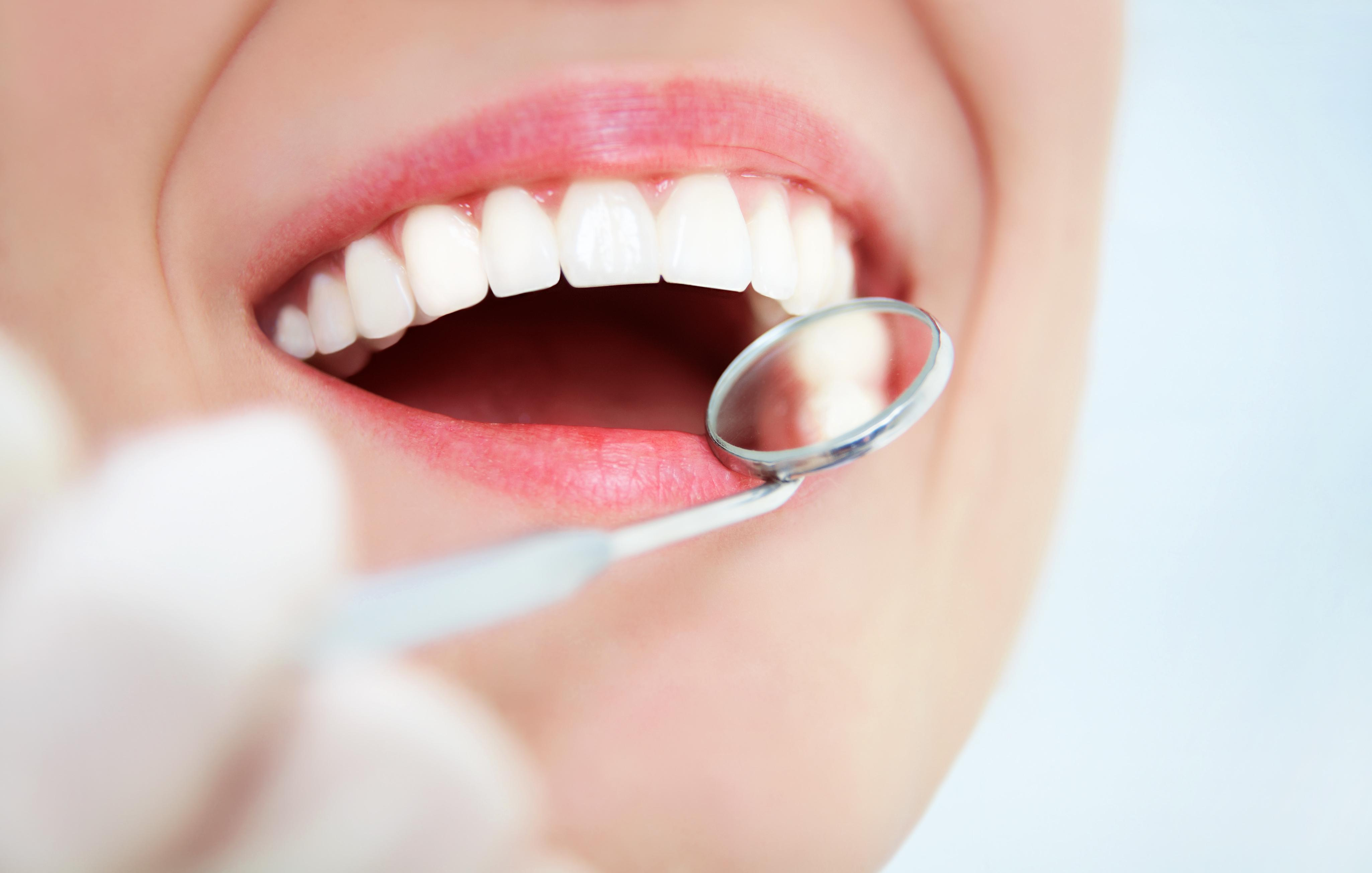 Regular Dental Cleanings Mitchell SD