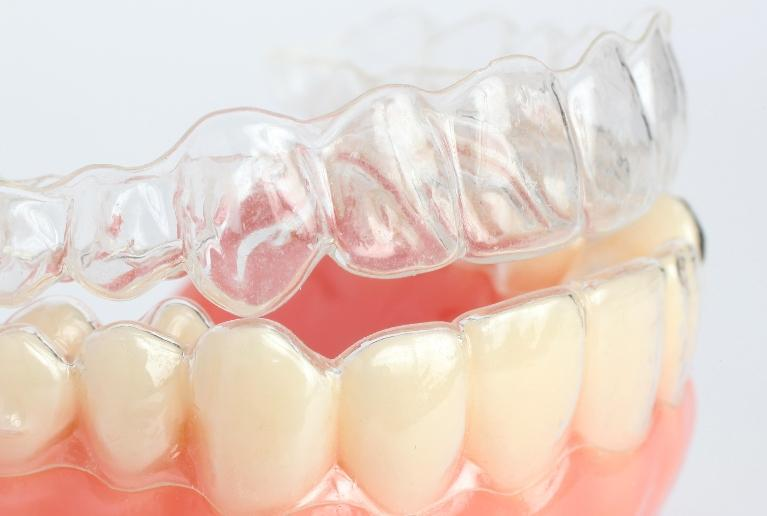 Invisalign services Mitchell, SD