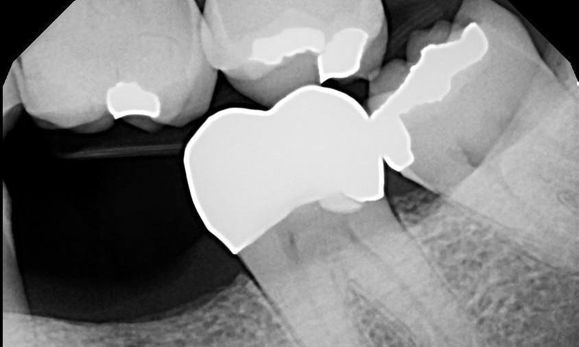 Digital X-Ray | Dental Health Partners in Mitchell, SD