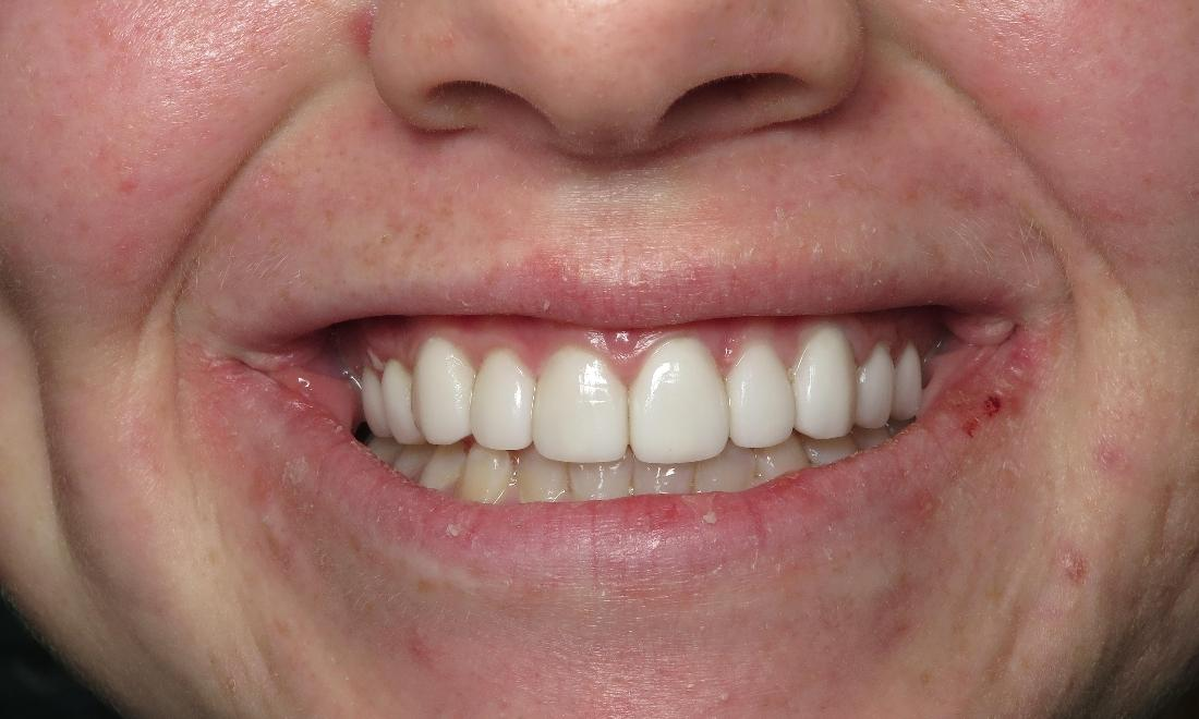 Bright Smile After Veneers | Dental Health Partners