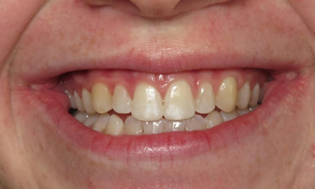 Stained Teeth Before Veneers | Dental Health Partners in Mitchell, SD