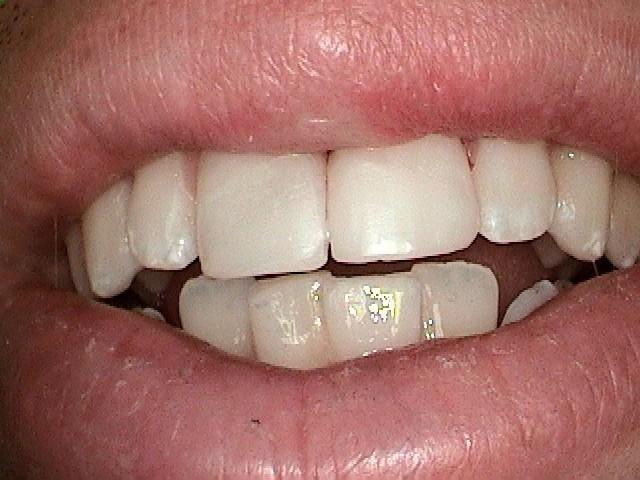 Broken-Front-teeth-After-Image