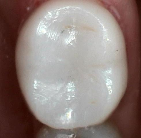Tooth-Colored-Crown-After-Image