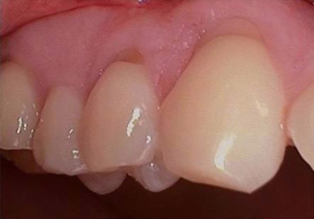 Gum-Graft-Before-Image