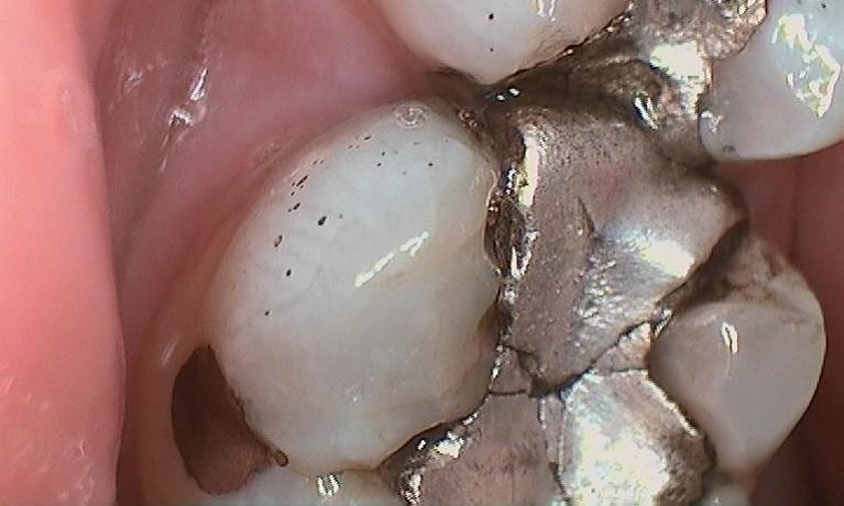 Tooth-Colored-Crown-Before-Image